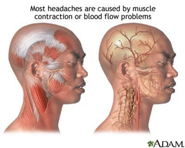 THE PROBLEM | HEADACHESNo More Headaches | Oral Appliance for Headache &  Migraine ManagementHeadache and TMD